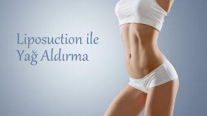 Liposuction Ameliyatı ile Yağ Aldırma